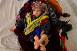 アフガニスタンの病院で、肺炎と栄養不良の治療を受ける生後10か月のオミッドちゃん。(2109年1月撮影)