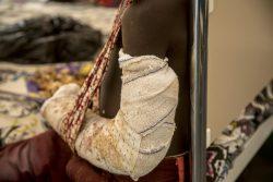 住んでいた村が武装勢力に襲われ、腕に銃弾を受けたマリの9歳の男の子。(2019年4月撮影)
