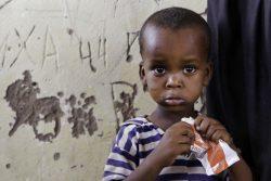 干ばつによって家を追われ、国内避難民キャンプの移動式クリニックで重度の影響で急性栄養不良の治療を受けるソマリランドの3歳の男の子。(2019年4月撮影)