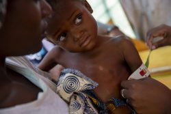Ndjenja 避難民キャンプ内にあるユニセフの保健所で、栄養不良の検査を受ける4歳のシンダちゃん。(2020年2月28日撮影)