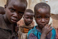 国内避難民キャンプの衛生状態は悪く、開いたままだったり化膿してしまった傷が手や顔に残る子どもたちが多くいる。(2020年2月14日撮影)