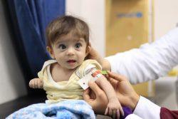 黄疸の症状でユニセフが支援するクリニックを訪れたシリアの赤ちゃん。(2020年2月13日撮影)
