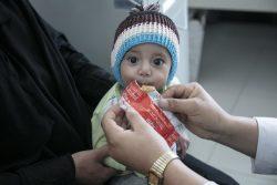 サヌアの病院ですぐに食べられる栄養治療食(RUTF)を口にする生後7カ月のモヘブちゃん。(イエメン、2020年2月5日撮影)