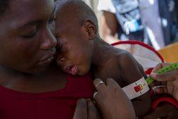 Ndjenja 避難民キャンプにあるユニセフの保健所で、栄養不良の検査を受ける1歳のアントニオちゃん。(モザンビーク、2020年2月28日撮影)