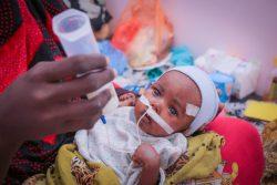 アデンの病院で重度の急性栄養不良の治療を受けるサレハちゃん。(イエメン、2020年2月9日撮影)