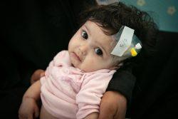 サヌアの病院で栄養不良と皮膚病の治療を受ける生後6カ月のディアラちゃん。(2020年2月5日撮影)