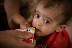 マアリブにある国内避難民キャンプで、すぐに食べられる栄養治療食(RUTF)を口にする1歳のアルワちゃん。(2020年3月12日撮影)