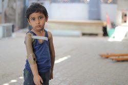 紛争が激化したアデンで、一年前に片腕を失った3歳のライアンちゃん。 (2020年2月6日撮影)