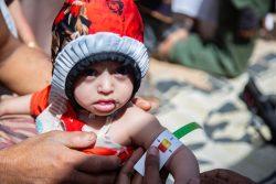 マアリブにある国内避難民キャンプで、上腕計測メジャーを使って栄養不良の検査を受ける1歳のアルワちゃん。(イエメン、2020年3月撮影)