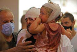 病院で治療を受ける傷ついた人たち。(2020年8月4日撮影)