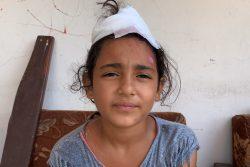 シャワーを浴びているときに大規模爆発が起こり、頭に怪我を負った10歳のミラさん。(2020年8月15日撮影)
