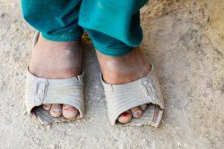 壊れたサンダルを履く9歳のザキラさん。父親の収入が少なく、新しいものが買えずにいる。(アフガニスタン、2020年9月2日撮影)
