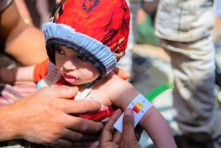 マアリブにある国内避難民キャンプで、上腕計測メジャーを使って栄養不良の検査を受ける1歳のアルワちゃん。(2020年3月撮影)