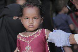 ハッジャ県の農村部で、栄養不良の検査を受ける2歳のホダちゃん。(2020年3月撮影)