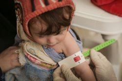 サヌアの保健センターで、上腕計測メジャーを使い栄養不良の検査を受けるアマルちゃん。(2020年6月撮影)
