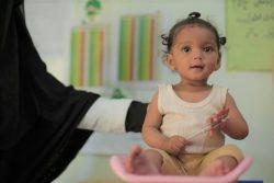 サヌアの保健センターで、栄養不良の治療を受ける生後9カ月のヌールちゃん。重度の急性栄養不良から回復しつつある。(2020年1月撮影)