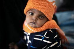 サヌアの病院で体重測定を受ける1歳のマゼンちゃん。(2020年2月撮影)