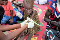 ピボールにある栄養センターで上腕計測メジャーによる栄養不良の検査を受ける4歳のカタリンちゃん。(南スーダン、2020年9月撮影)