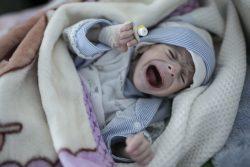 重度の栄養不良にかかり、サヌアの病院で治療を受ける生後4カ月のシュアイブちゃん。(イエメン、2020年2月撮影)
