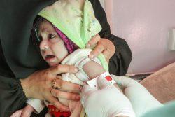 上腕計測メジャーによる栄養不良の検査を受ける生後7カ月のラワビちゃん。(2020年12月撮影)