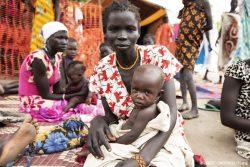 ピボールにある栄養クリニックで診察を受ける、急性栄養不良の生後8カ月のチャチャちゃん。(南スーダン、2020年9月撮影)
