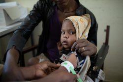 ティグライ州の保健センターで、上腕計測メジャーを使って栄養不良の検査を受ける子ども。(2021年4月撮影)