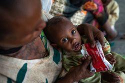 ティグライ州にある保健センターで、すぐに食べられる栄養治療食(RUTF)を口にする栄養不良の1歳の赤ちゃん。(2021年6月7日撮影)