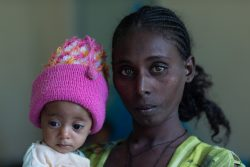 母親に抱かれる栄養不良の生後6カ月のカルキダンちゃん。(エチオピア、2021年6月7日撮影)