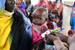 中央部Bardangazにある保健センターで、上腕計測メジャーを使って栄養状態の検査を受ける子ども。(チャド、2021年5月撮影)