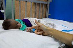 栄養治療を受ける子ども。(2021年8月24日撮影)