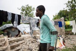 地震の被害にあい、足首の骨が砕けてギブスを付けている16歳の男の子。(2021年8月31日撮影)