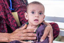 ユニセフが支援するヘラート地域病院の入院治療食センターで、重度の急性栄養不良と診断された1歳のジャビットちゃん。(2021年9月28日撮影)