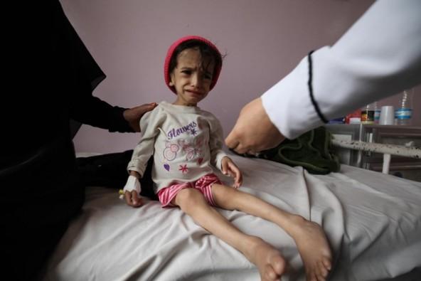 栄養不良に陥り、身体が弱って歩くことのできない2歳8カ月で体重7キロ女の子。