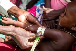ユニセフとWFPによる合同の栄養支援で、栄養状態の検査を受ける子ども。