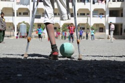 ユニセフの「子どもにやさしい空間」でサッカーをする、爆弾で8歳の親友と片足を失った男の子。