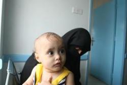 爆撃のトラウマを負い、診断のため、母親と共に診療所を訪れた男の子。