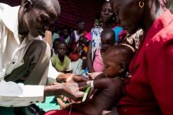 上腕部の計測を行い、栄養状態の検査を受ける子ども。