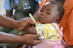 上腕部を測り、栄養状態の検査を受ける女の子。