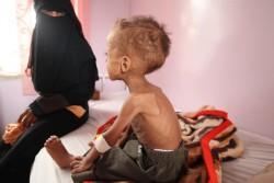 重度の急性栄養不良に陥り、病院で治療を受ける1歳半の子ども。