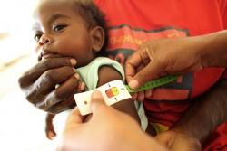 栄養状態のチェックを受ける、1歳のステファニーちゃん。栄養不良と診断されたため、すぐ口にできる栄養治療食を受けとった。