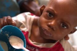 半月前、祖母に連れられ50km離れた村から保健施設に担ぎ込まれた、重度の急性栄養不良の治療を受けるトゥハフェニくん(1歳半)。エルニーニョの影響により干ばつと洪水が繰り返し発生したアンゴラでは、多くの子どもたちが重度の急性栄養不良に苦しんでいる。