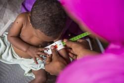 ボルノ州マイドゥグリ近くのミュナ・ガレージ国内避難民キャンプに設置されたユニセフが支援する栄養治療センターに、重度の栄養不良で搬送された2歳のアッシュちゃん