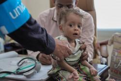 イエメン・サアダ州で医療支援を受ける子ども(2016年3月撮影)。