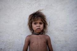 インド・ラージャスターン州ビルケラ・ダーン村に住む、サハリア族のループシンちゃん(4歳)。ラージャスターン州での子どもの死因の約6割は栄養不良に起因する。(インド・ラージャスターン州 2014年5月30日撮影)