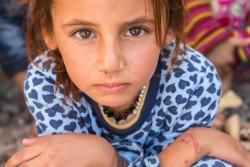 デバガ難民キャンプで家族とともに暮らすヌアちゃん