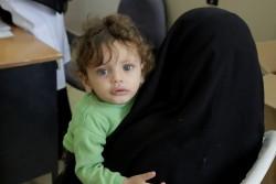 イエメンの病院で、栄養状態を調べる検査を受けるため母親と待つ女の子(2016年5月6日撮影)