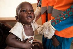 ナイジェリア、ボルノ州の診療所で栄養失調と診断された男の子。(2016年11月17日撮影)