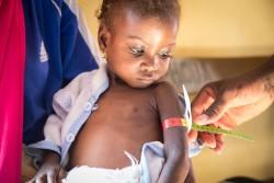 ナイジェリア・マイドゥグリの栄養治療センターで検査を受ける子ども