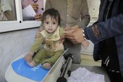 イエメンの病院で、体重測定をする子ども。