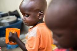 南スーダンの首都ジュバにある病院でミルクを飲む栄養不良状態の男の子。